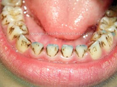 Cara Alami Menghilangkan Noda Hitam di Gigi Dalam 1 Hari