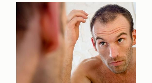 Penyebab Rambut rontok pada pria dan pencegahannya
