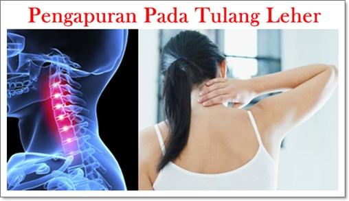 Hasil gambar untuk pengapuran tulang leher
