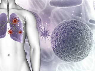 20 Food and Drinks Effective Cancer Cell Killers