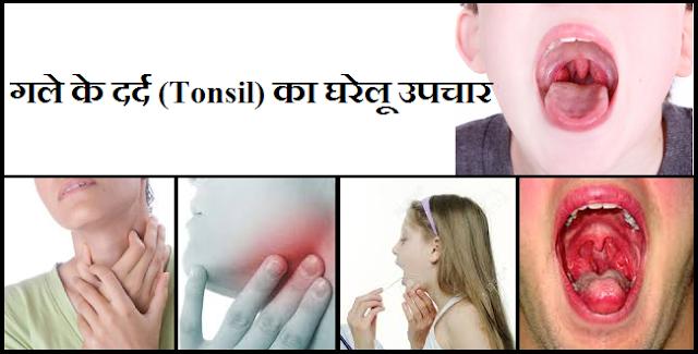 गले के दर्द (Tonsil) का घरेलू उपचार