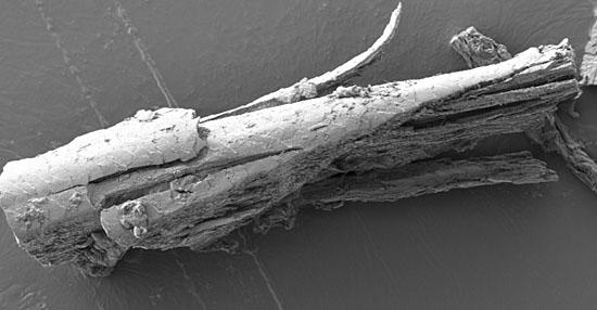 As coisas mais bizarras que você sempre quis ver no microscópio - Pelo do rosto