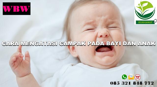 http://www.klikgamat.com/2018/08/cara-mengatasi-dan-mengobati-campak-pada-bayi-dan-anak.html