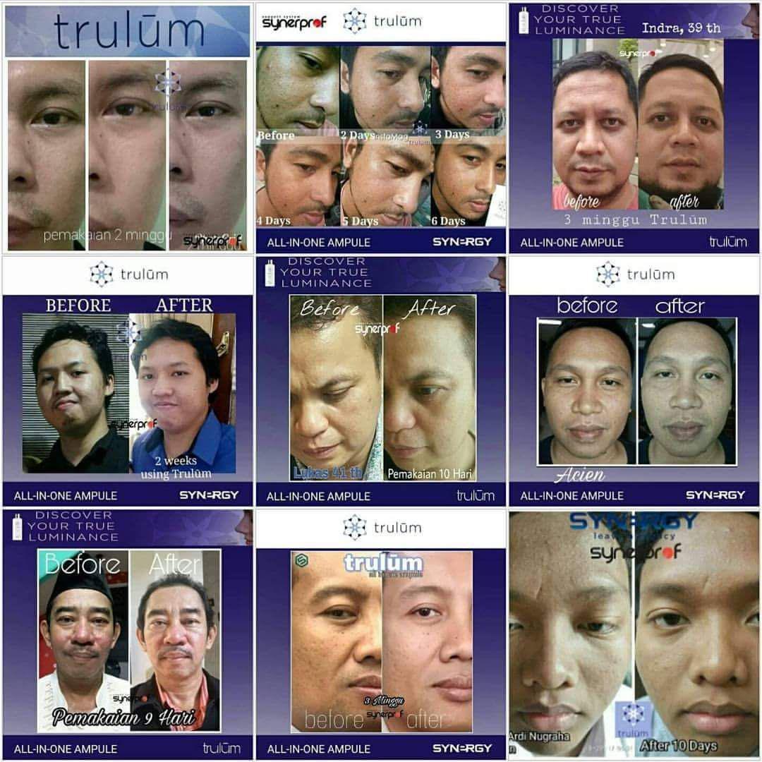 Klinik Kecantikan Trulum All In One Ampoule Di Cubadak Aia, Payakumbuh Utara WA: 08112338376