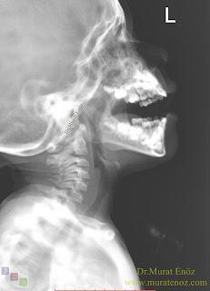 Geniz eti büyümesi - Adenoid face - Geniz eti yüzü - Geniz eti büyümesine bağlı çene yapısında bozulma - Geniz eti büyümesine bağlı dişler nasıl etkilenir? - Çocuklarda geniz eti büyümesi çene ve dişleri nasıl etkiler? - Adenoid hipertrofisi - The Mouth Breathing Syndrome (MBS - Ağız Solunumu Sendromu) - Geniz eti büyümesi kendiliğinden ne zaman durur? - Geniz eti filmi nasıl çekilmelidir?