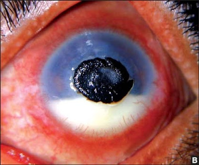 Figs 9A and B: These pictures show an ulcer that is brown (A) black (B) in color and caused by dematiaceous fungi that produce similar pigmentation in culture. Often the clinical presentation might be mistaken for a foreign body in the cornea due to the color and appearance