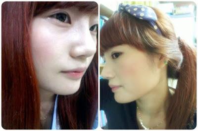 2 minggu sesudah operasi plastik hidung Korea