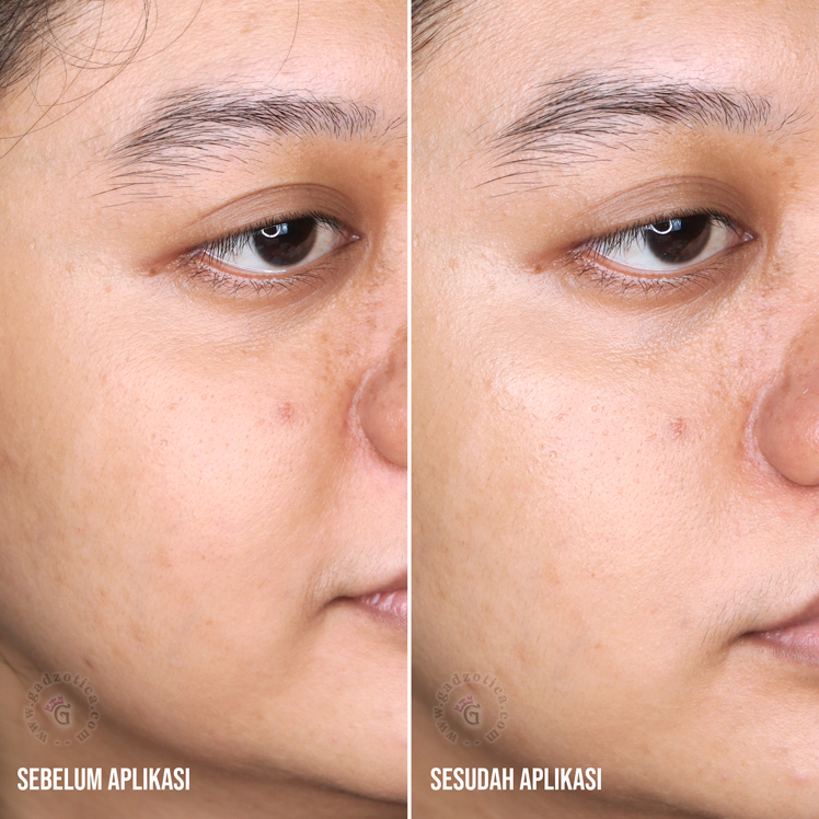 Before after base personalized skincare