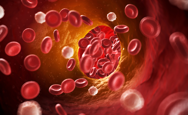 Haemophilia, A Bleeding Disorder