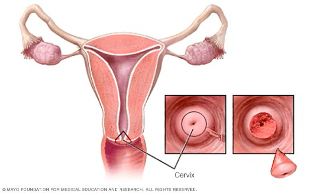 cervical-cancer-cure-rate