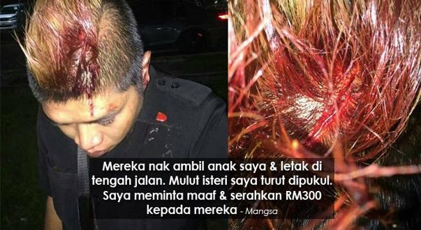 Bodyguard Dipukul Samseng Jalanan Di Kepala, Terima 9 Jahitan