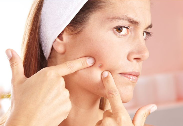 How To Get Rid Of Acne Faster With No Side Effect - healtinews