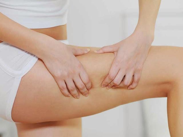 Γυναίκες προσοχή: Τι πρέπει να τρώτε για να νικήσετε την κυτταρίτιδα