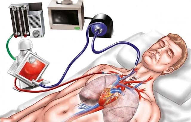 ECMO là gì, khi nào bệnh nhân cần phải can thiệp tim phổi nhân tạo