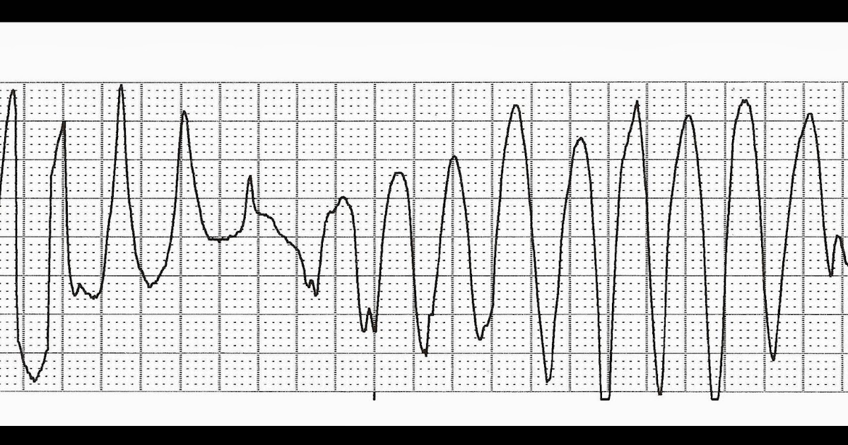Float Nurse: Practice EKG Strips 330