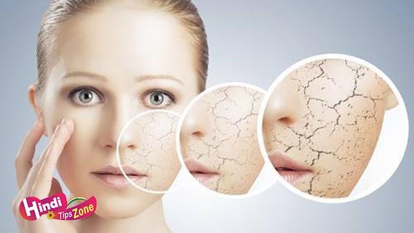 Winter Skin Care Tips In Hindi (सर्दियों में त्वचा की देखभाल की टिप्स)