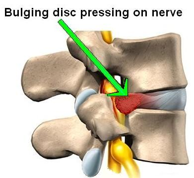 best pillow for a bulging disc in your neck the final word elite rest