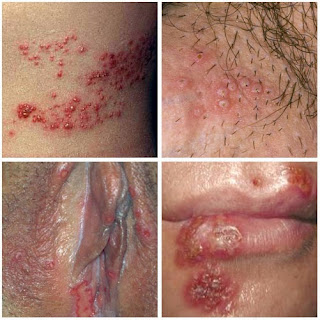 Image obat herpes genitalis paling ampuh pada wanita
