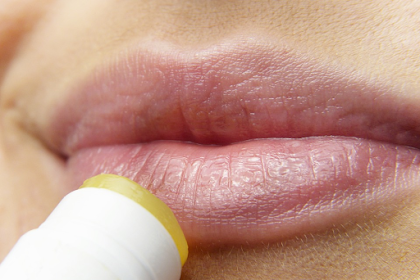 How to Treat Cold Sores at Home