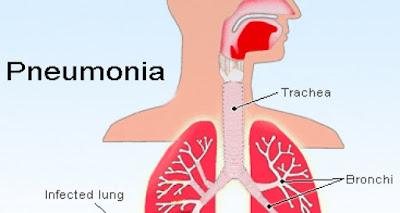 Bahaya penyakit Pneumonia Bisa Sampai Meningitis