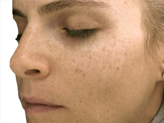 Phân biệt các loại nám da để điều trị tốt hơn