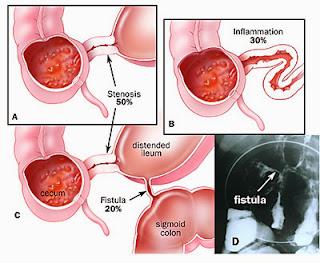 boli inflamatorii intestinale