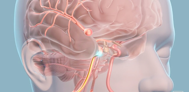 Treatment Options Available for Curing Aneurysms Fast and Effectively