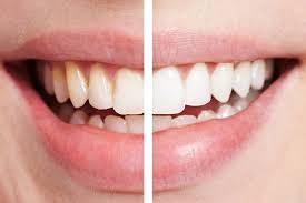 4 Tips Hindari Efek Samping Memutihkan Gigi Dengan Bleaching