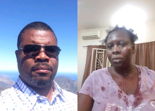 Man allegedly brutalizes his wife of 10 years (Photos)