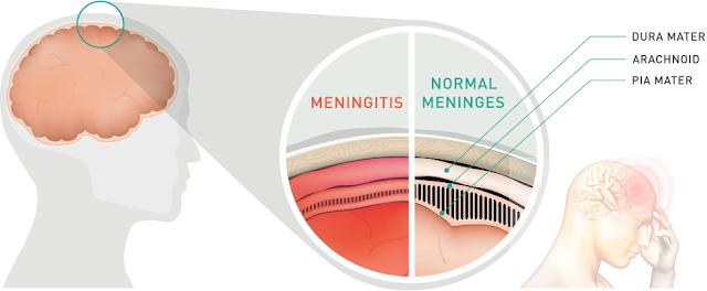 Cara Mengobati Radang Selaput Otak (Meningitis) Terbukti Ampuh Untuk Semua Usia