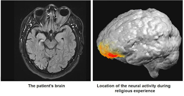 Imagens demonstram regiões afetadas pela alucinação do paciente