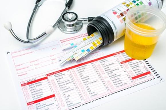 Coleta de exame de urina