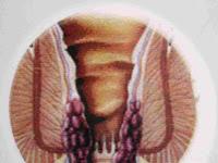 Penyembuhan Wasir Hemoroid
