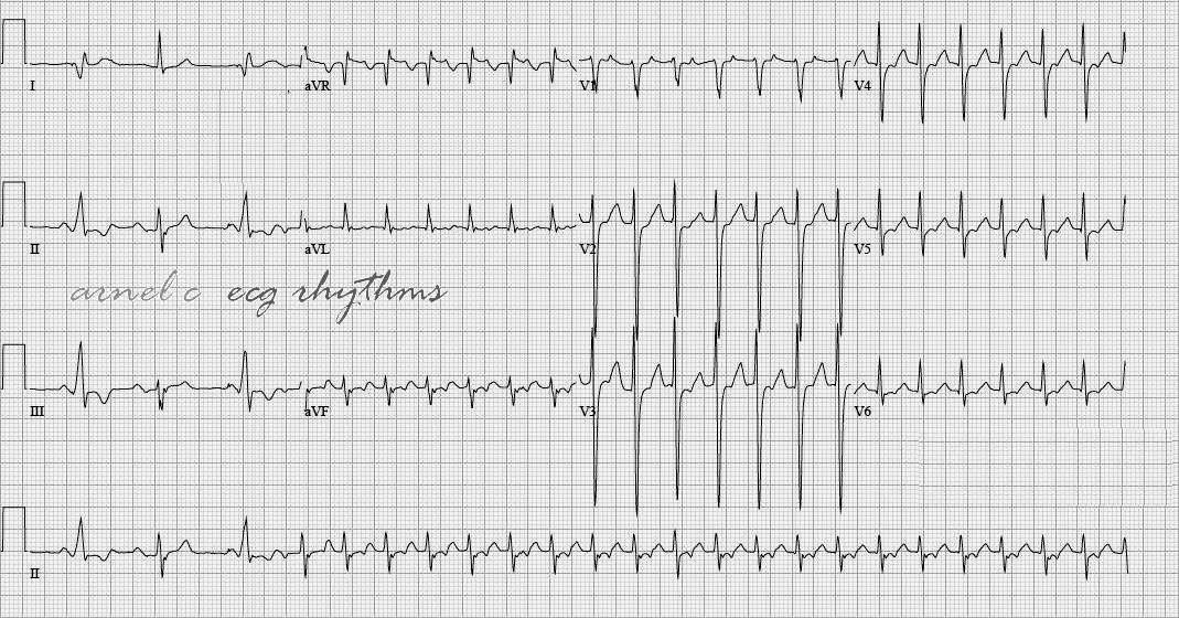 ECG Rhythms Orthodromic AV Reentry Tachycardia