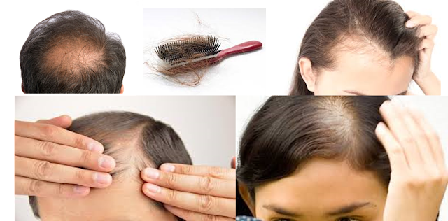 How To Stop Hair Falling