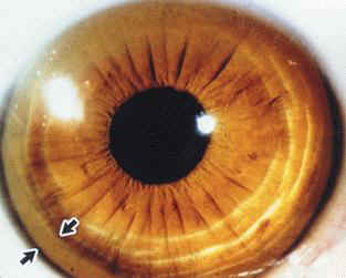 Images For Kayser Fleischer Kf Ring Wilson S Disease