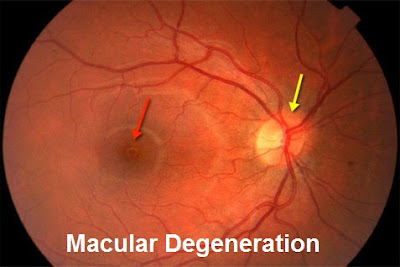 Macular degeneration is an eye disease that makes you see more and more blurred Macular Degeneration Causes, Diagnosis And Treatment