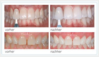 Die professionelle medizinische Zahnaufhellung in Ihrer Zahnarztpraxis