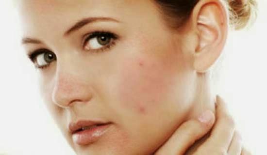 Cara menghilangkan kulit wajah belang