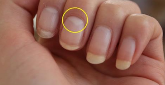 Do Not Have A Half-Moon Shape On Your Nails