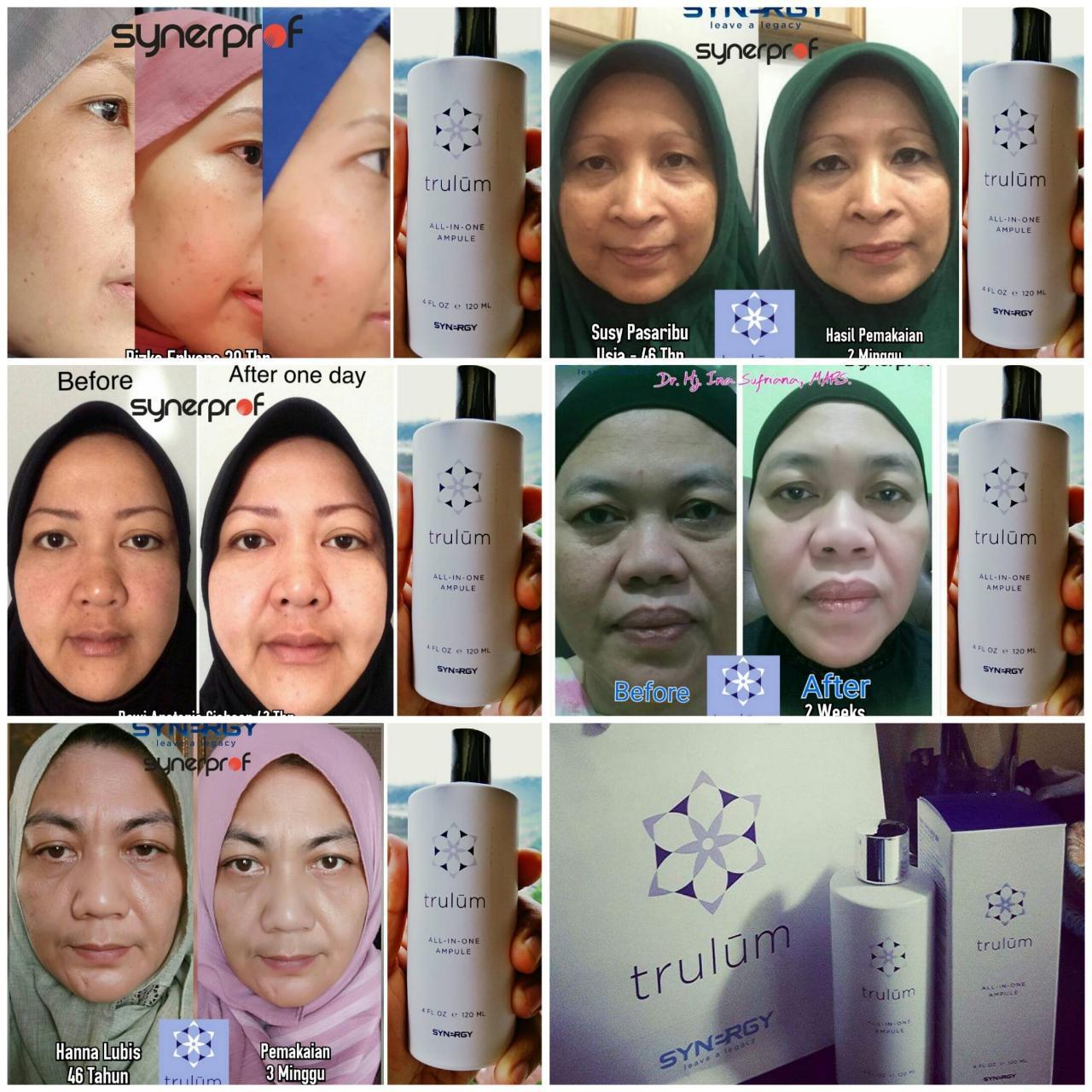 Cantik Tanpa Harus Ke Tempat Perawatan Wajah di Gayam Sari Kota Semarang