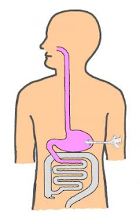 Gastrojejunostomy ICD-10, Indications, Tube, Diet