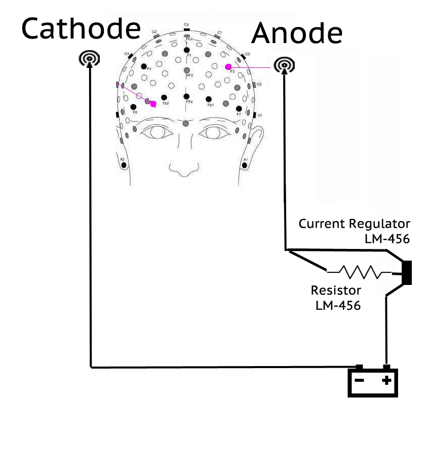 tcds diagram