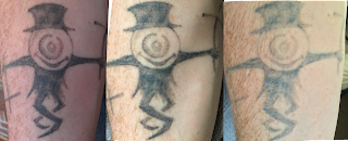 Collage showing timeline of tattoo fading over a year picosure and q-switched lasers.