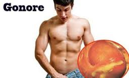 Image Ciri penyakit infeksi kelamin gonore