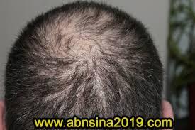 ساقط الشعرالوقاية والعلاج