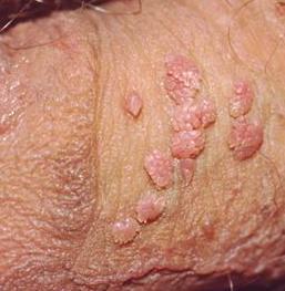 Obat Herbal Virus Hpv