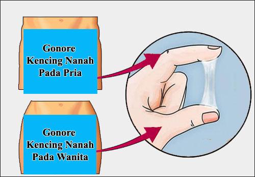 Gambar gonore