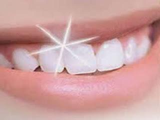cara memutihkan gigi yang kuning secara alami karena rokok dengan cepat sudah permanen garam