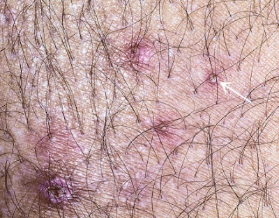 Bacterial folliculitis, showing hairs emerging from pustules (arrow).